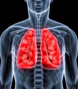 La-bronquiolitis-es-una-infecci-C3-B3n-viral-que-afecta-los-pulmones